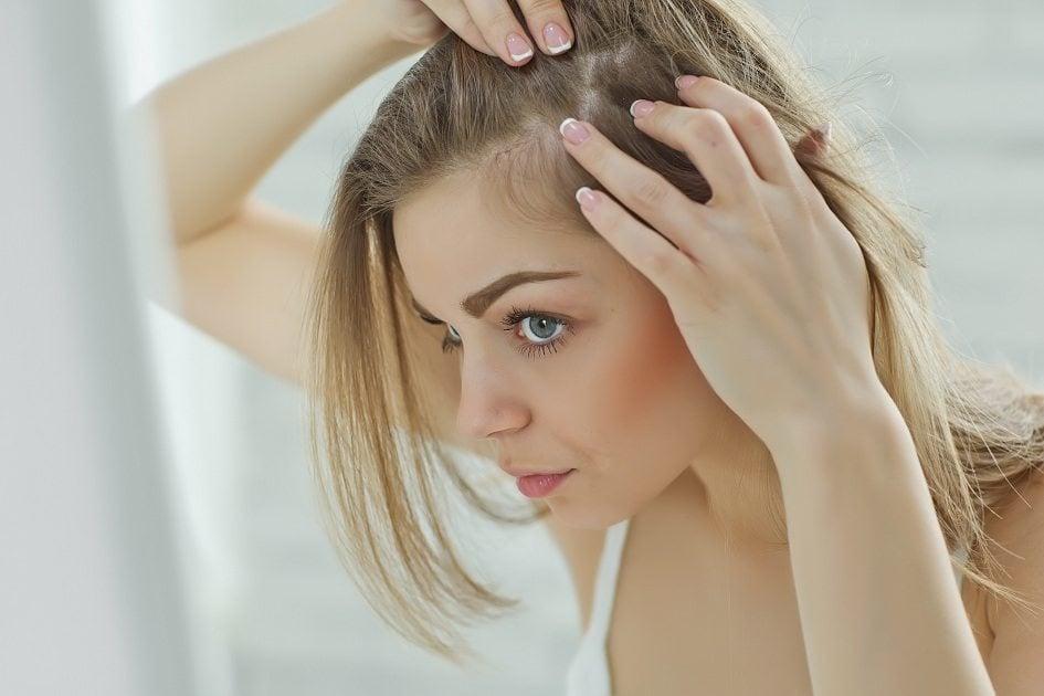Causas da queda de cabelo feminino